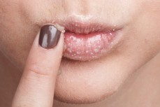 Home remedies to treat chapped lips 02