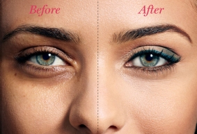 Tips and Tricks to Effectively Cover Dark Circles and Puffy Under Eyes 03