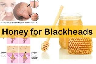 Home remedies blackheads 07
